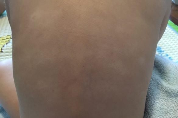 Corey's nutritious skin healing broth for eczema babies